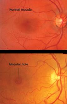 macular hole south bay ophthalmology